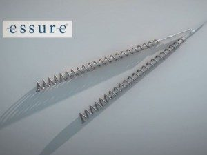Essure nickel metal allergy