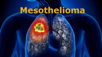 National Injury Help   Top Asbestos Attorneys Explain ...