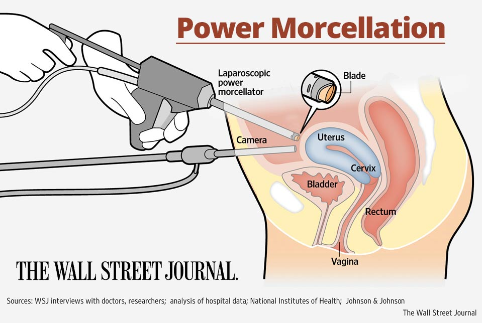 power morcellator settlements