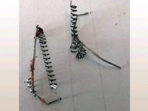 Used coils after Essure removal