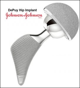 Hip implant lawsuit