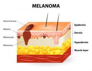 melanoma-768x588