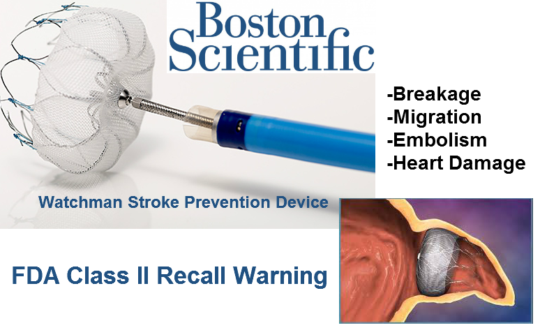 Watchman Stroke Device lawsuit