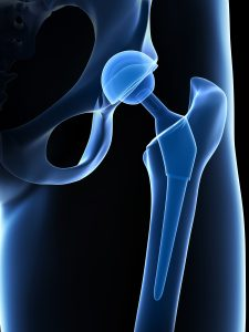 depuy hip replacement lawsuit