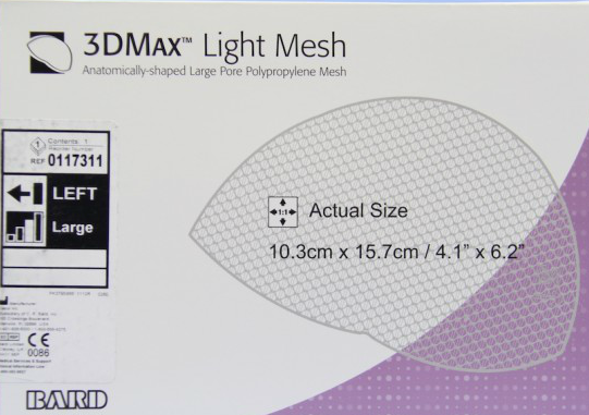 Bard 3DMAX hernia mesh lawsuit