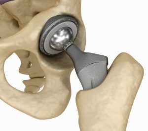 Metal on Metal Hip replacement parts