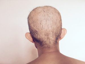 Taxotere hair loss lawsuit