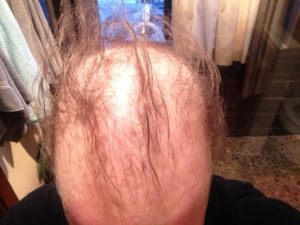 Docetaxel Hair Loss