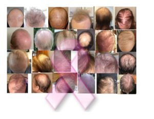 Image shows taxotere hair loss victims