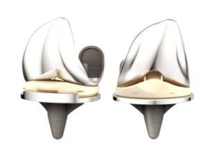 tibial loosening of the DePuy ATTUNE knee replacement