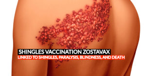 Zostavax shingles vaccine lawsuit